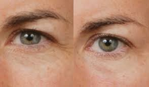 De-Stress Eye treatment - 15Min - 550,000VND